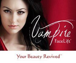Vampire Facelift® is the most popular non-invasive, non-surgical aesthetic procedure