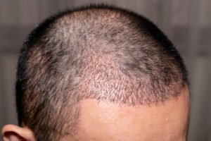 Can PRP Regrow Hair?