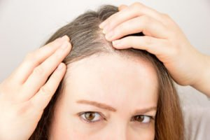 Does PRP Thicken Hair?